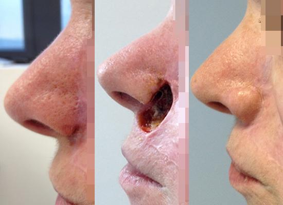 Chirurgie plastique reconstructive du visage