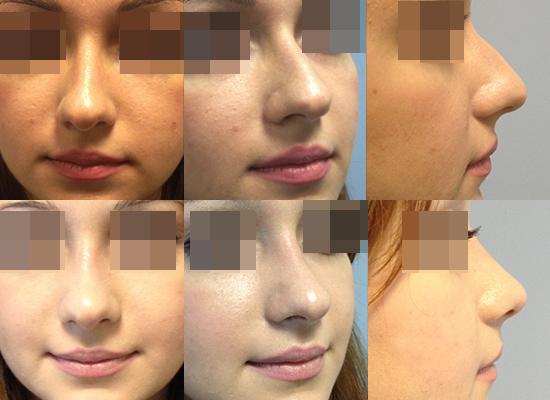 docteur cecile winter rhinoplastie nice bosse nez