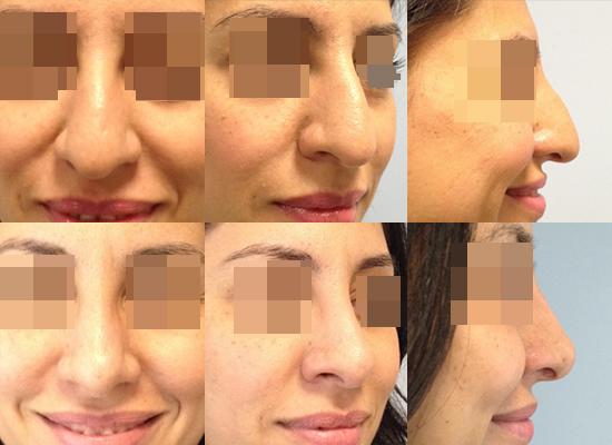 docteur cecile winter rhinoplastie nice cicatrice