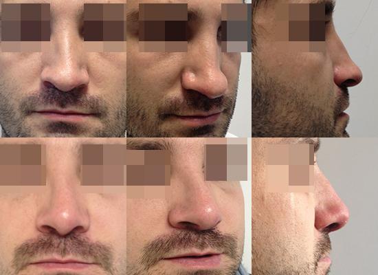 docteur cecile winter rhinoplastie nice nez plat